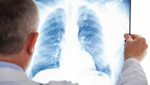 На Тернопільщині епідемічна ситуація з туберкульозом