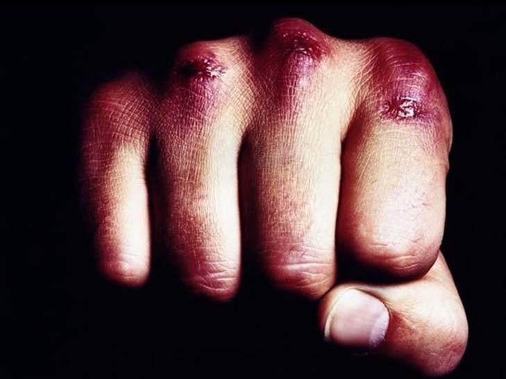 Нічна бійка: тернополянам вночі порізали голови та руки