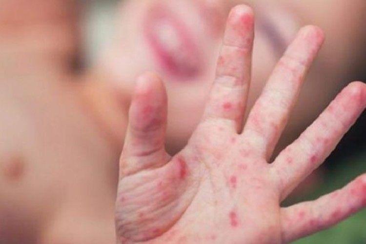 Хворих на кір виявляють в усіх районах Тернопільщини