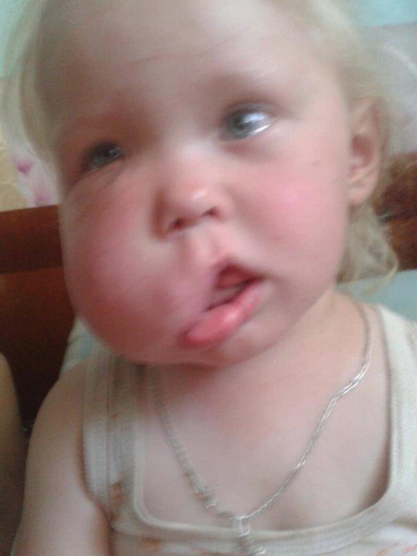 На Тернопільщині чоловік бив вагітну жінку у живіт: постраждала дитина (ФОТО)
