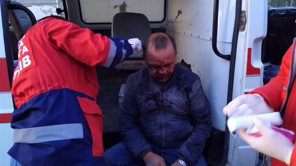 На Тернопільщині через яму на дорозі серйозно травмувався водій (ФОТО)