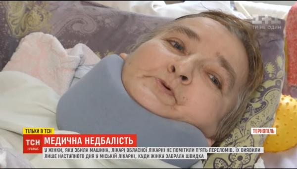 Скандал у Тернополі: медики не помітилидекілька переломів у пацієнтки, яка потрапила у ДТП (ВІДЕО)