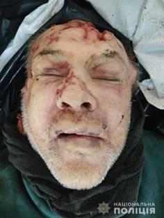 На Тернопільщині встановлюють особу невідомого, тіло якого знайшли на залізниці (ОБЕРЕЖНО, ФОТО 18+)