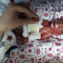 """Історія """"Дюймовочки"""": у Тернополі народилася дівчинка вагою 610 грамів (ФОТО, ВІДЕО)"""