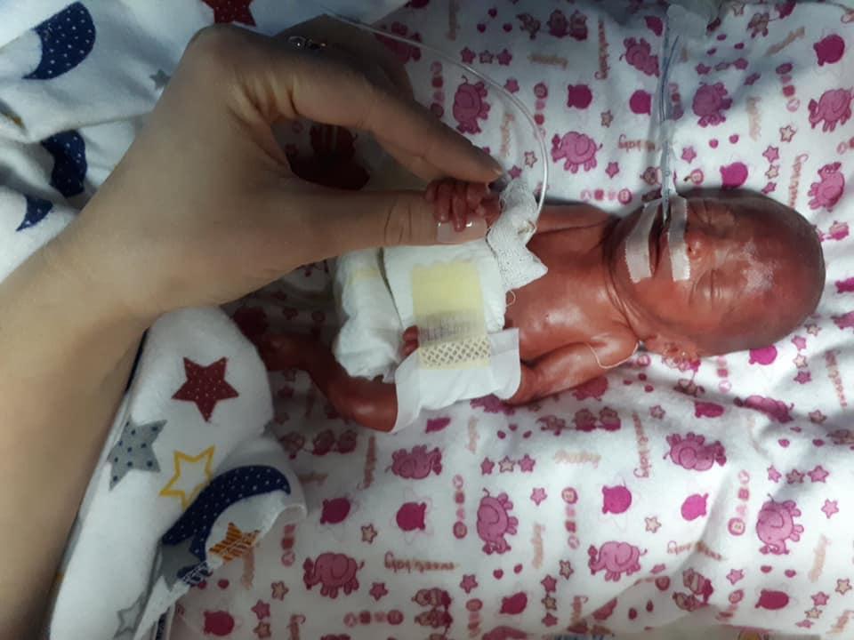 """Історія """"Дюймовочки"""": у Тернополі народилася дівчинка вагою 610 грамів (ВІДЕО)"""