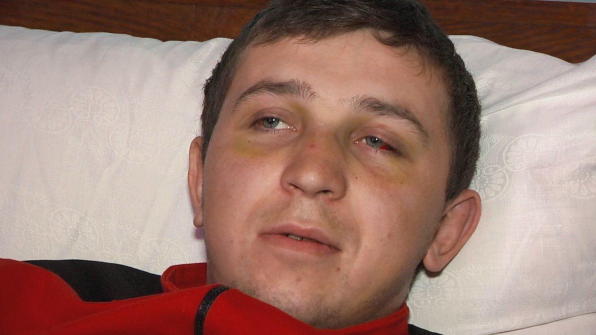 На Тернопільщині сільські розбірки закінчилися проламаним черепом: подробиці жорстокого побиття (ФОТО, ВІДЕО)
