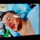 """""""Йшов з дівчиною в магазин"""": на Тернопільщині по-звірячому побили 22-річного хлопця, він у реанімації (ФОТО)"""