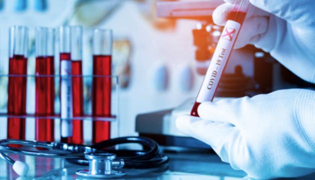 Коронавірус на Тернопільщині: +21 хворий за добу
