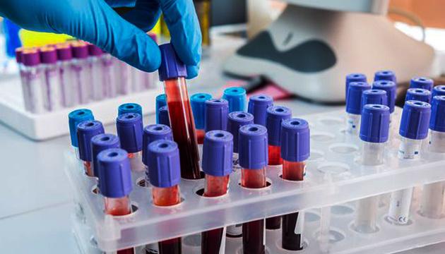 Навіть втретє: на Тернопільщині виявляють повторні випадки зараження коронавірусом