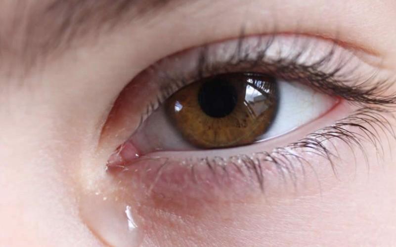 У центрі Тернополя біля бару невідомі бризнули дівчині в очі хімічною речовиною