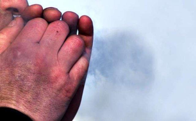 Руки були майже чорні: на Козівщині рятували чоловіка від обмороженя