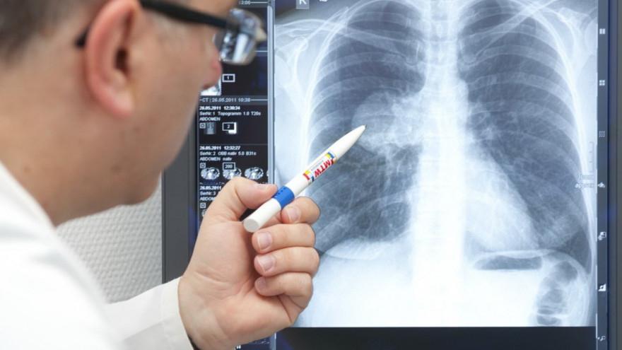 На Франківщині нова хвиля пандемії: за добу 79 госпіталізацій з важкими пневмоніями