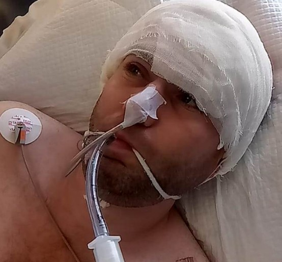 """""""Впав, вдарився головою, а зранку не встав"""": у Тернополі 37-річний чоловік перебуває в комі та потребує допомоги"""