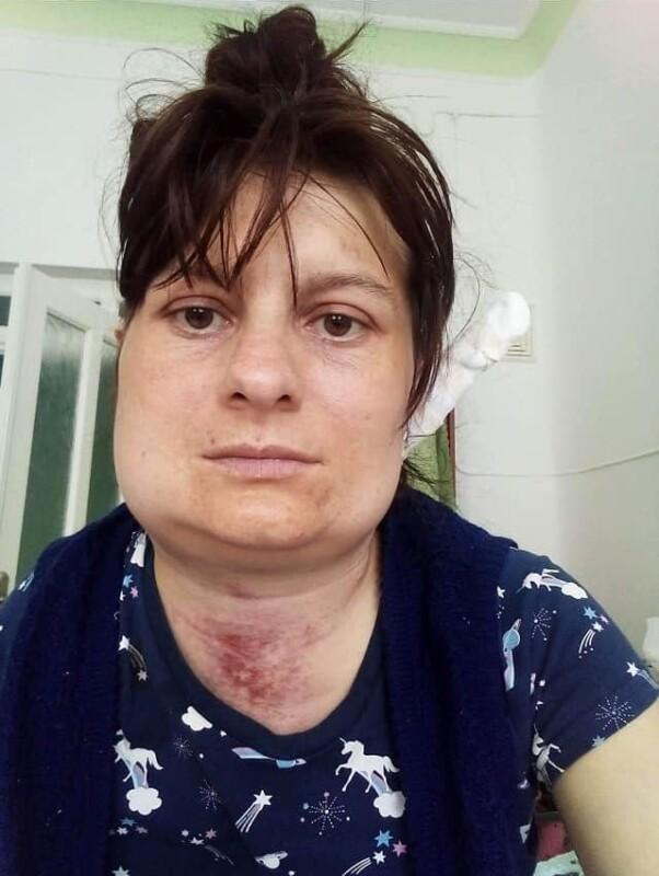 Після коронавірусу у жительки Тернопільщини відмовляє єдина нирка: необхідні кошти на пересадку