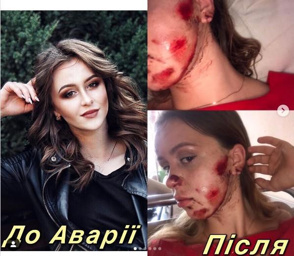 На Тернопільщині син поліцейського збив дівчину і покинув її помирати: його досі не покарали