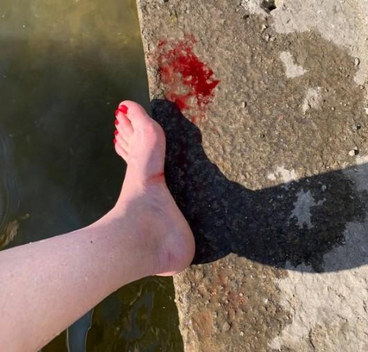 У Тернополі на ставі купатися небезпечно: хлопець порізав голову, а жінка ногу (ФОТО)