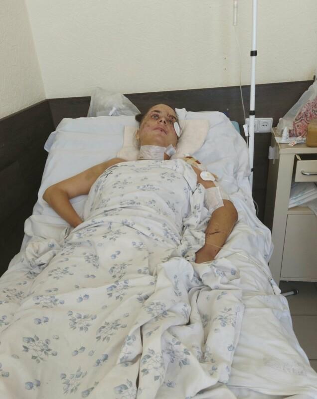 """""""Страшні травми, пошкоджено спинний мозок"""": дівчина з Тернопільщини потребує допомоги небайдужих (ФОТО)"""