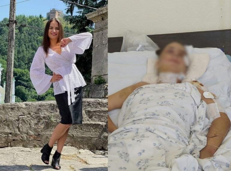 """""""Будемо молитися"""", – лікарі рятують дівчину з Кременця, яка сильно постраждала у ДТП дорогою в Київ (ФОТО)"""